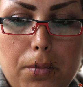 Woman with lips sown shut in protest of dentention